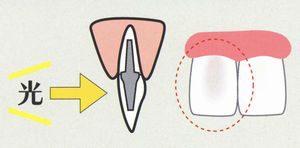 ファイバーコアとメタルコア(銀色)の光の透過性の違い