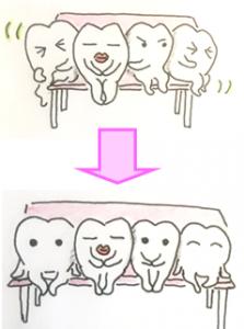 歯科矯正イラスト