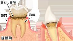 歯周病説明①