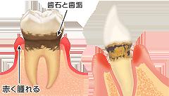 歯周病説明②
