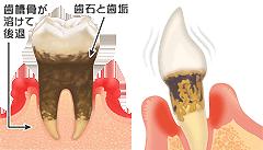歯周病説明③